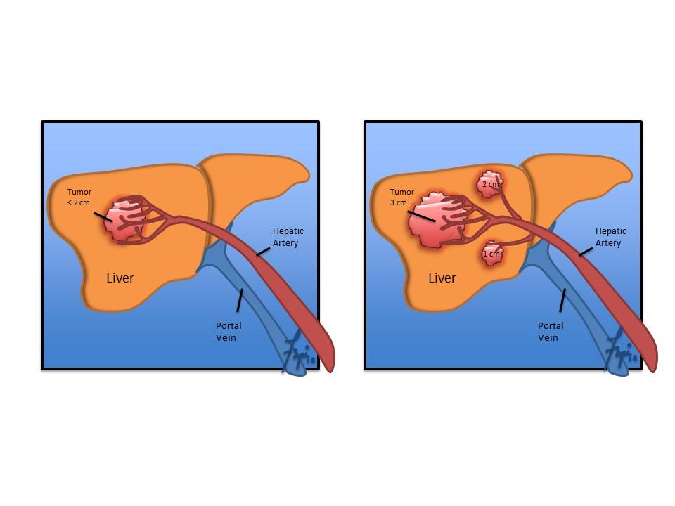 Liver cancer and transplants